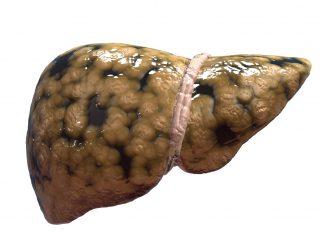 Hohe Mengen gesättigter Fette werden mit einer Fettleber in Verbindung gebracht